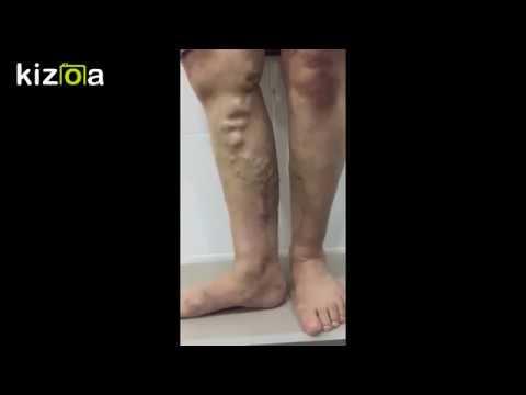 Simptomele durerii în picioare în varicoză
