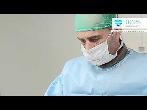 Tratamentul simptomelor HBP medicina