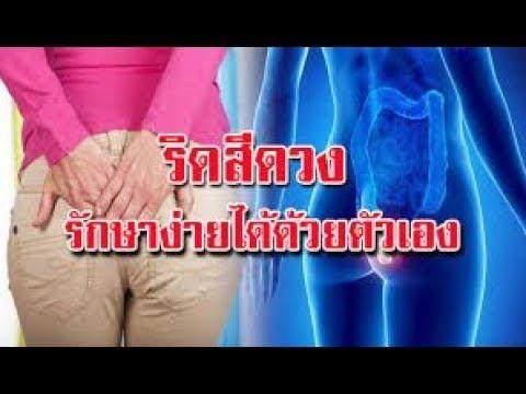 หลังการผ่าตัด thrombophlebitis