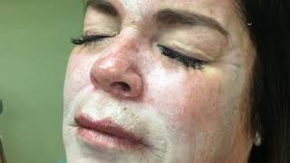 Dr. Reynolds - Tri Chloro Acetic acid peel