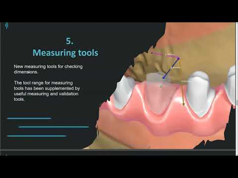 Tizian CAD Plovdiv update — experience the future of dental-CAD design
