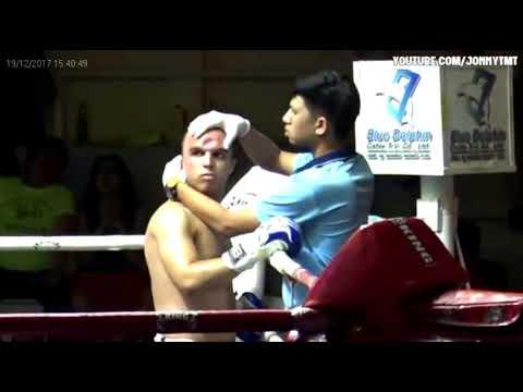 Escalofriante lesión en una pelea de Muay Thai: recibió un violento codazo que le hundió la frente