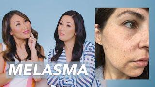 Dark Spots and Melasma Removal Skincare Routine for New Mom Kâté!