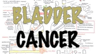 Bladder Cancer - Overview (types, pathophysiology, diagnosis, treatment)