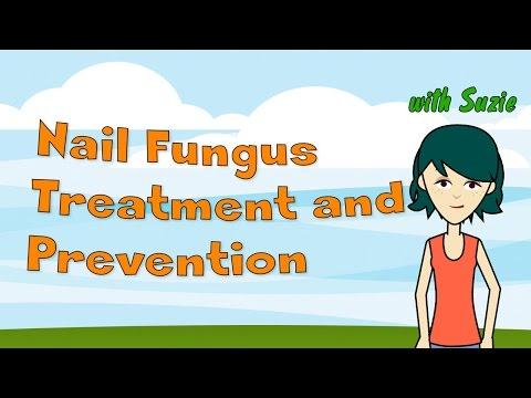 Die Behandlung gribka der Nägel von der Homöopathie die Rezensionen