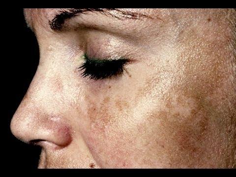 Les photos des jeunes filles avec les taches de rousseur