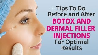 Tips To Do Before and After Botox and Dermal Filler Injections For Optimal Results