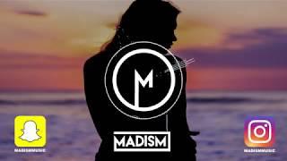 Lewis Capaldi   Hold Me While You Wait (Madism Remix)