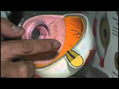 Hipermetropia poate fi fără astigmatism