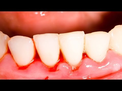 Video How to Get Rid of Gingivitis | Gingivitis Treatment