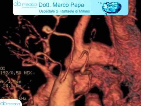 Ipertensione Darsonval