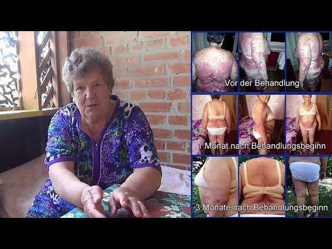 Angriff Osteochondrose zervikalen thorakalen