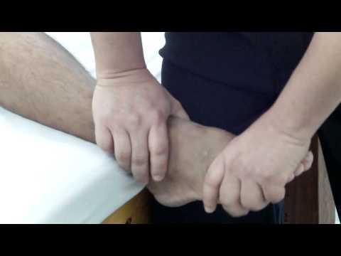ก้อนระหว่างนิ้วเท้าในขณะที่การรักษา