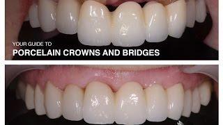 Porcelain Crowns and Bridges