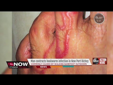 Vidéo sur les parasites dans la personne aux opérations