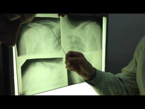 Рентген лопатки, ключицы