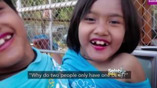 Kisah Gadis Kembar Siam Yang Sukses   Seleb Expose