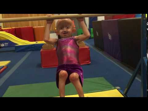 Play Meet Zoey, A Progeria Champion! Support ONEpossible today
