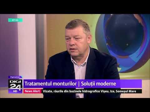 Durere de osteochondroză în articulația umărului