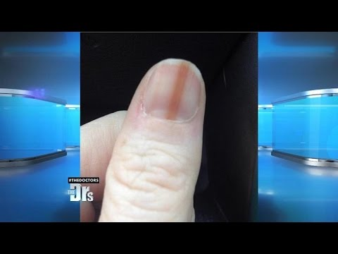Video Melanoma on Your Nail?