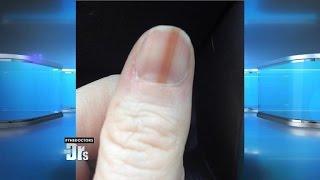 Melanoma On Your Nail?