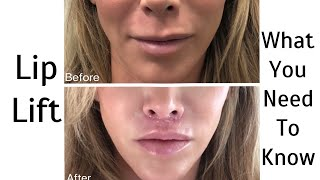 All About My Lip Lift Procedure with my Dr!