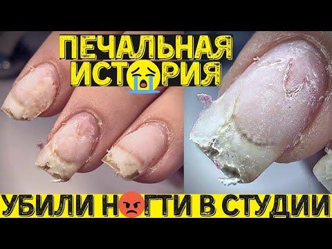 Чем ОПАСНО перенашивать гель лак? Маникюр и дизайн ногтей