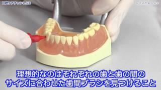 歯間ブラシは一番小さなサイズからスタート