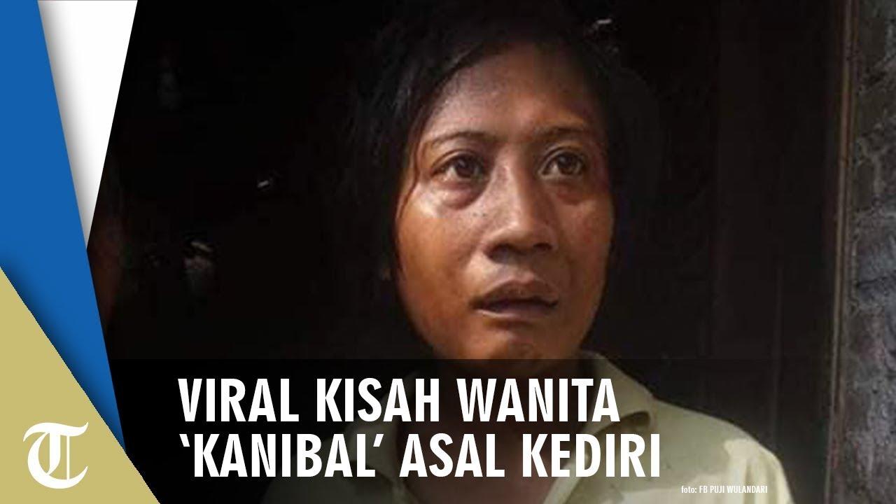 Viral Wanita 'Kanibal' Asal Kediri yang Menggigit Jari-jarinya sampai Terluka