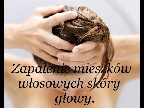 Korona łysienia u mężczyzn