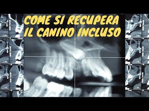 Osteocondrosi del farmaco colonna lombare