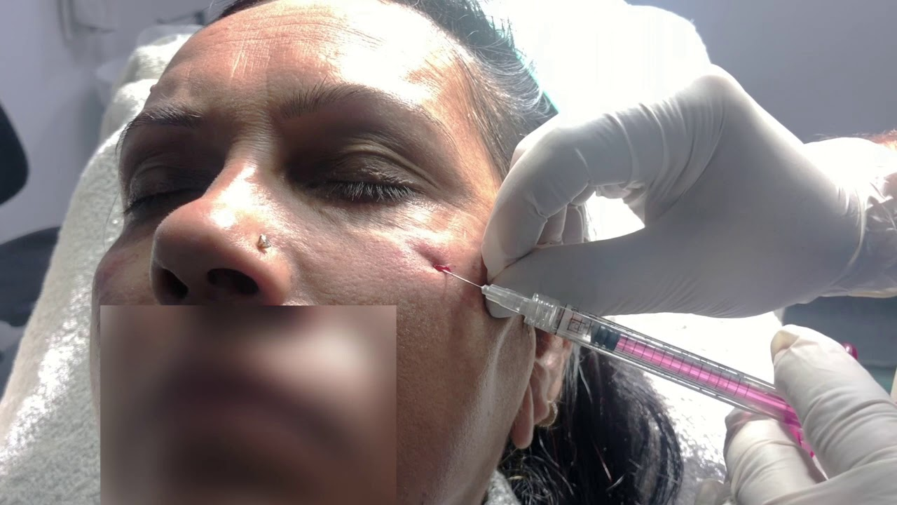 Under eye filler treatment by Dr Jangid