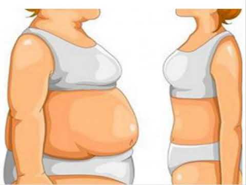Transformations perte de poids monture dora