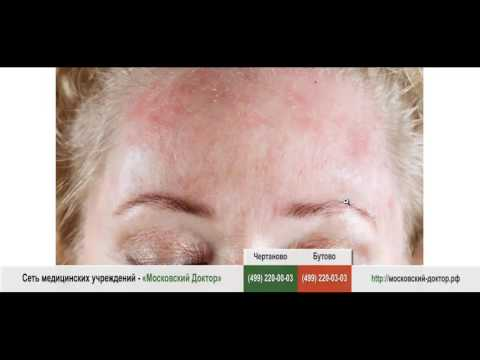 Лазерное удаление пигментных пятен на лице отзывы фото цена
