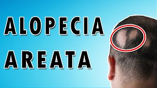 Causes and Treatment of Hair Loss - Alopecia Areata
