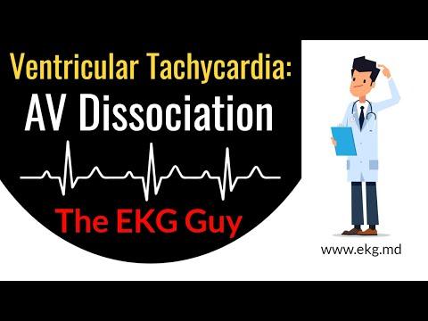 AV Dissociation in Ventricular Tachycardia