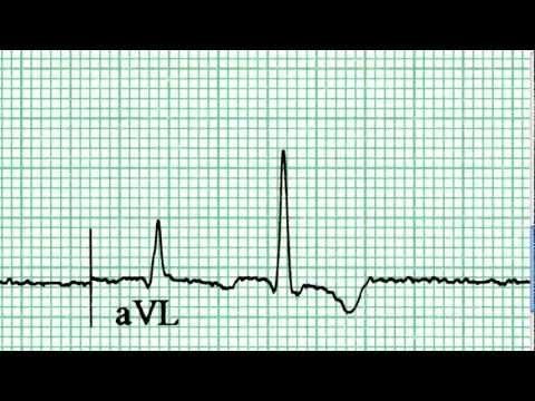 Interpretacja EKG - Pierwsze Wrażenia, 6-1