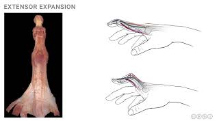 Anatomy of the Upper Limb: Extensor Expansion