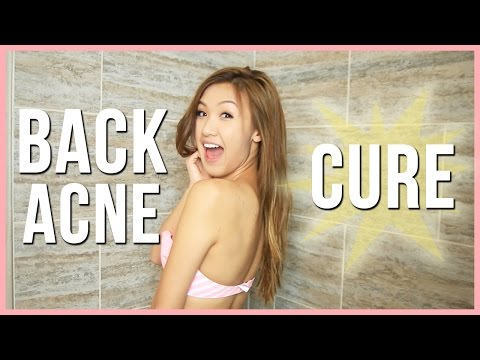 My Back Acne Cure!   ilikeweylie