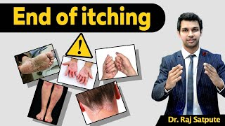 How to Get Rid of Psoriasis Naturally & Permanently in One Week With Just One Diet For Psoriasis