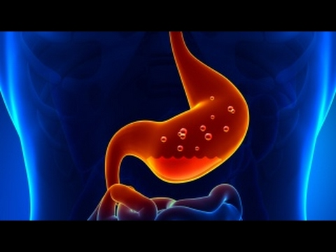 Colorectal cancer therapy