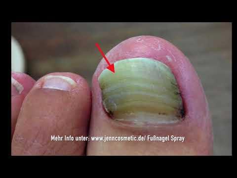 Formidron behandelt gribok der Nägel