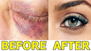 How to Get Rid of a Black Eye Fast_Top 5 Best Ways