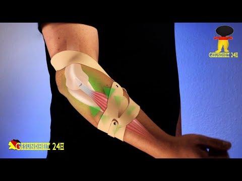 Schwangerschaft Rückenschmerzen auf der linken Seite