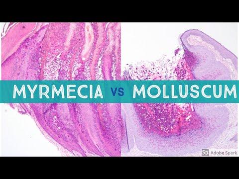 Enterobiosis fertőzés módszere