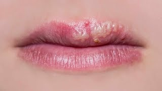 how to prevent a cold sore when you feel it coming