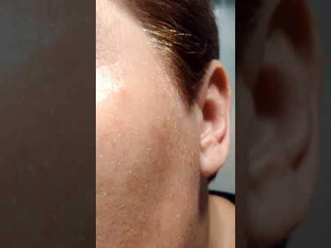 How does a plexr treatment heal_halftime: 10 days after follow up treatment_close up