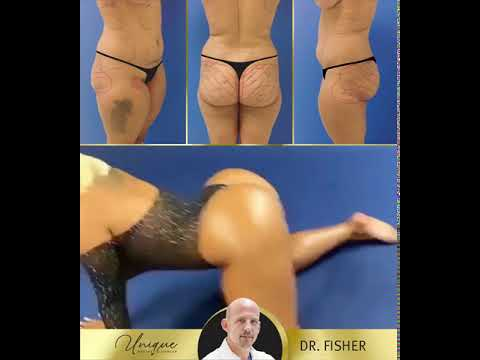 Brazilian Butt Lift -  Before Vs After - Fisherdoll Nydesha | Unique Aesthetic Center