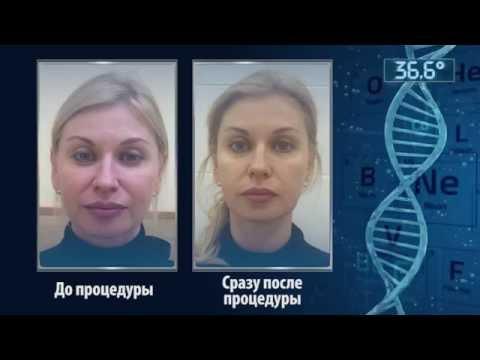 Последствия после лазерной шлифовки лица
