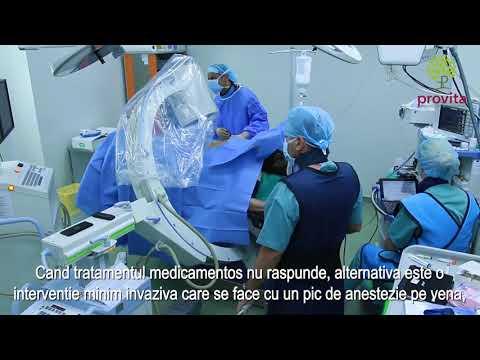 Tratarea țesutului conjunctiv uman